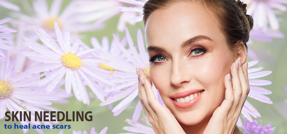 Skin Needling to Heal Acne Scars and Other Common Skin Problems