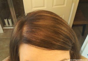 Hair Loss In Women - 7 Amazing Tips to Treat and Conceal, Feel Good Today