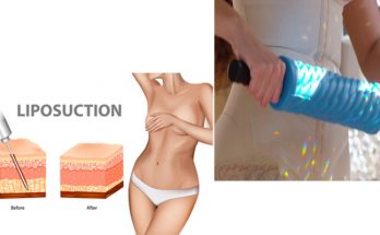 Liposuction or Liposphere Therapy?